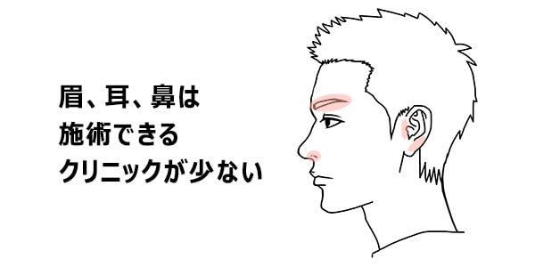 眉、耳、鼻を脱毛できるクリニックは少ないという説明画像