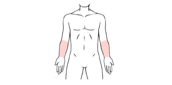 前腕の脱毛範囲の画像