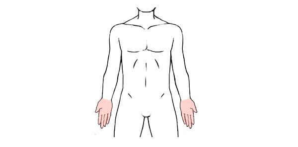 手や手指の脱毛範囲の画像