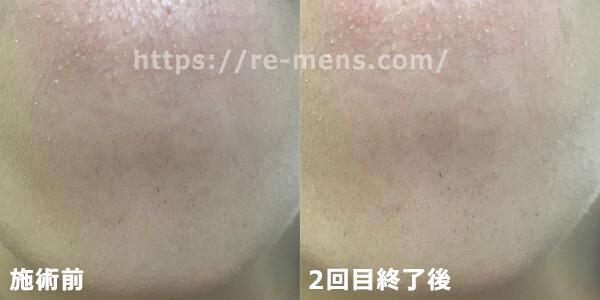 アゴの脱毛前と2回目の比較画像