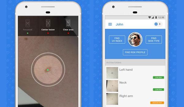 無料アプリでホクロを撮るだけ!皮膚がんのリスクを調べる『SkinVision』とは