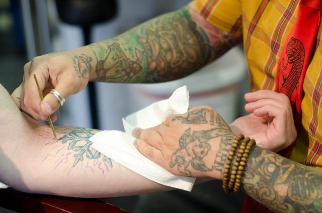 タトゥーの消し方